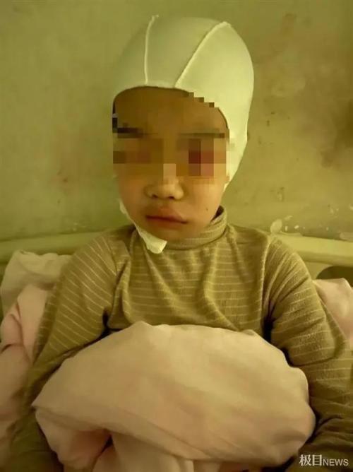 老师揪学生头发致皮骨分离被刑拘提出50万私了遭拒